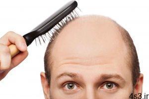 هشت دلیل چرب شدن موها چیست ؟ سایت 4s3.ir