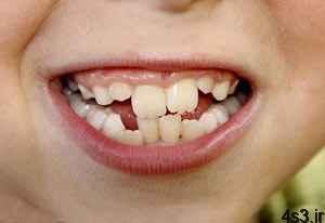 چرا دندان ها کج رشد می کنند؟ سایت 4s3.ir