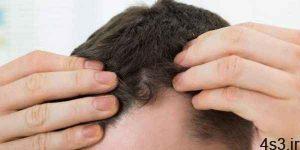 کندن موی سفید باعث افزایش آن نمیشود سایت 4s3.ir