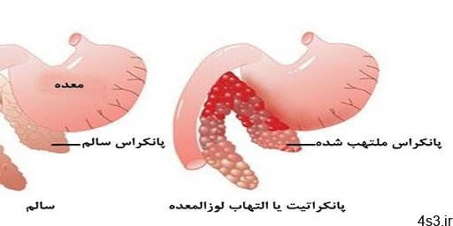 لگن در زنان - التهاب لگن در زنان