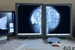 ماموگرافی به چه دردی می خورد؟ سایت 4s3.ir