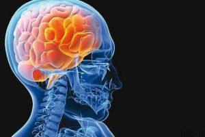 6 عامل سکته مغزی در زنان سایت 4s3.ir